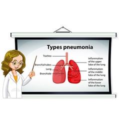 Doctor explaining types of pneumonia vector