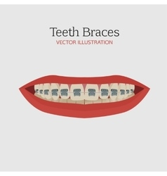 Teeth braces vector image