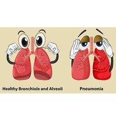 Diagram showing healthy and pneumonia lungs vector