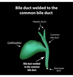 Bile duct welded to the common bile duct vector