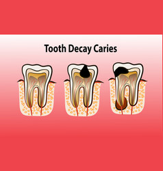 Tooth decay caries vector