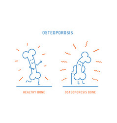 osteoporosis cartoon bone vector image