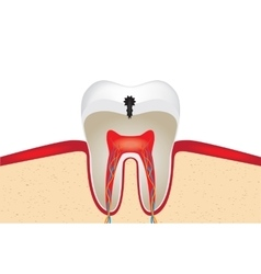 Crop of tooth vector image