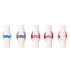 Rheumatoid arthritis in human body vector