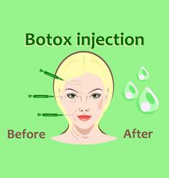 cosmetic surgery botox vector image vector image