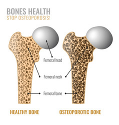 Osteoporosis bone image vector