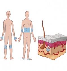 skin psoriasis disease vector image vector image