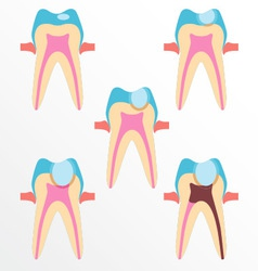 Stage of caries vector