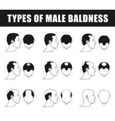 Types of male baldness vector