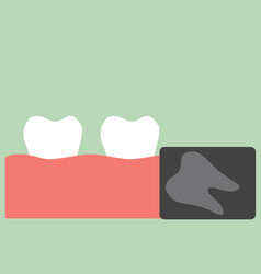 x-ray wisdom tooth vector image