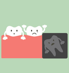 x-ray wisdom tooth vector image vector image