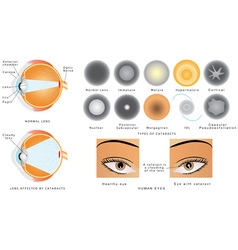 Cataract vector image