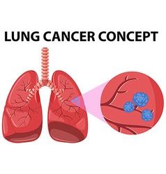 Diagram of lung cancer concept vector image