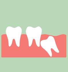 wisdom tooth vector image