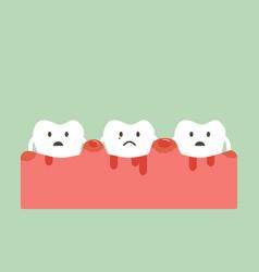 Periodontitis and bleeding vector
