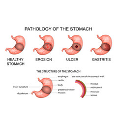 Pathology of the stomach vector
