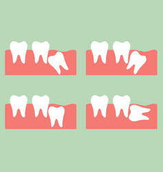 wisdom tooth vector image vector image