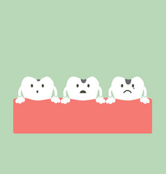 Stages of tooth decay vector