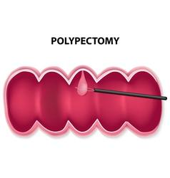 Polypectomy vector