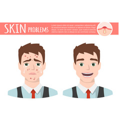 acne treatment before after facial cleansing foam vector image