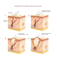 pimple and acnes vector image