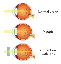 Myopia and myopia corrected by a minus lens vector