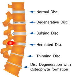 Spine conditions vector