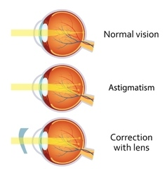 Astigmatism corrected by a cylindrical lens vector