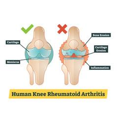 Human knee rheumatoid arthritis diagram vector