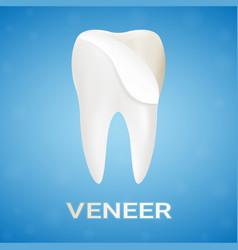 Dental veneers on a human tooth isolated on a vector