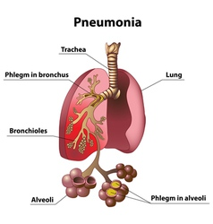 Pneumonia vector image