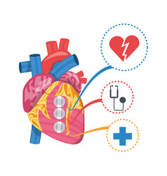 Heart condition to infarction prevention vector