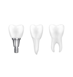 Tooth implants and normal tooth isolated on white vector