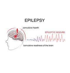 Epilepsy factors of emergence vector
