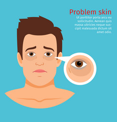 Young man face problem black circles vector