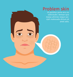 young man face dry skin problem vector image vector image