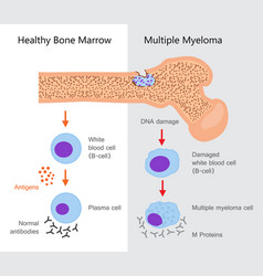 multiple myeloma diagram vector image