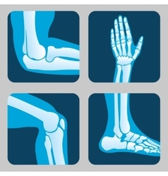 Human joints knee and elbow ankle wrist Medical vector image