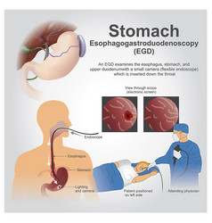 egd stomach vector image vector image