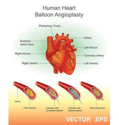 Human heart balloon angioplasty vector