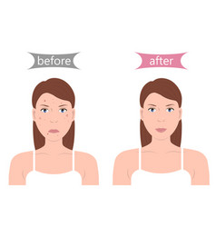 Girl with acne before and after vector
