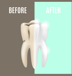 Teeth whitening before and after vector