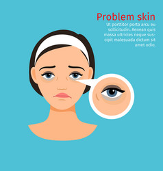 Woman face problem eye black circles vector