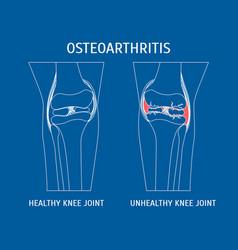 Thin line osteoarthritis healthy and unhealthy vector