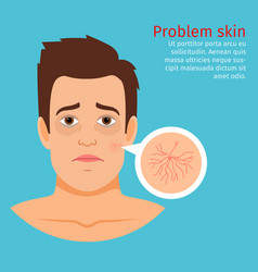 Man face skin problem buried capillaries vector