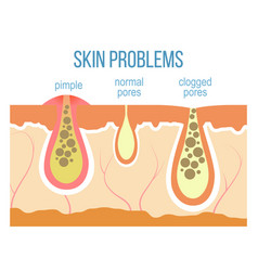skin pores close up vector image vector image