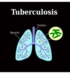 Tuberculosis lung disease tubercle bacillus vector