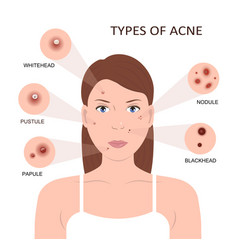 Types of acne woman with pimples vector