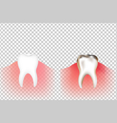 Tooths vector