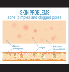 skin and pores vector image vector image
